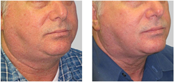 Precision Aesthetics Renews Its Commitment to Non-Surgical Body Shaping and Non- Surgical Fat Reduction with Exilis Elite